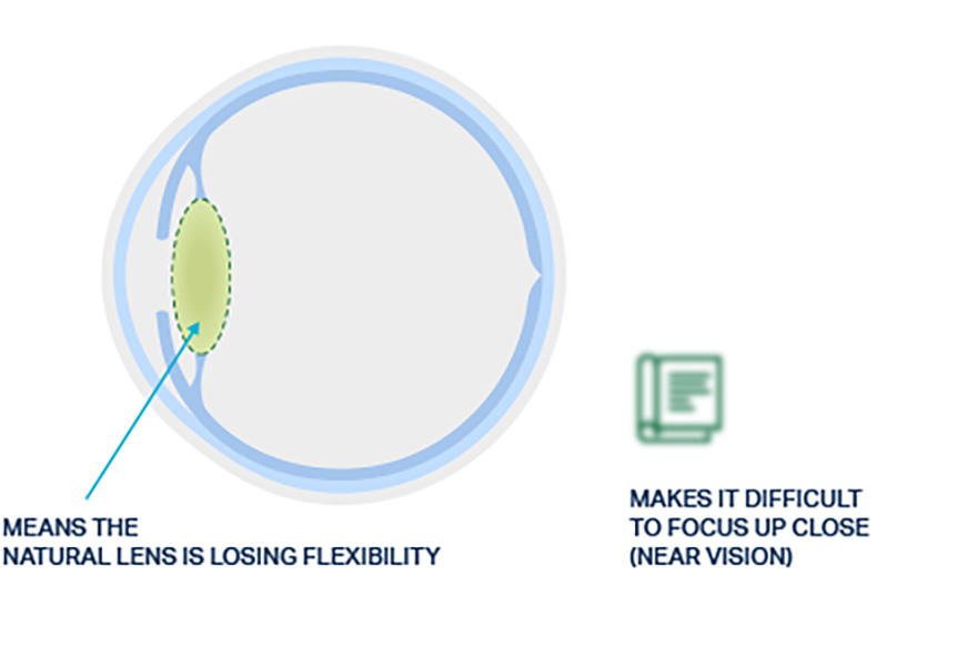 Visual of a natural eye lens with presbyopia